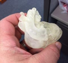 Stratasys, 3DHEART trial, open enrollment, 3-D printed pediatric heart models