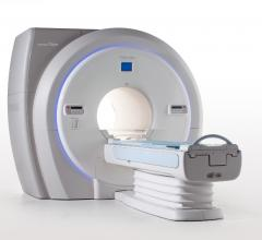Toshiba, Vantage Titan 1.5T cS Edition, MRI, RSNA 2016, cardiac exams, FDA clearance