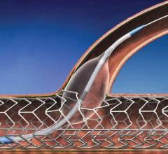 TriReme, PTA Chocolate Balloon, valvuloplasty, heart valve repair