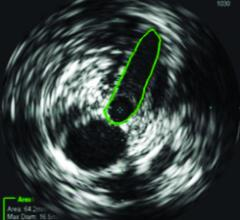 Philips, Volcano, IVUS, vein obstruction diagnosis, multiplanar X-ray venography, VIDIO study