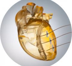 Bioventrix, Revivent-TC System, heart failure, first-in-man procedure