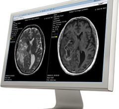 SyMRI, Cincinnati, CCHMC, synthetic MRI, pediatrics
