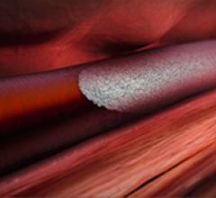 Polidocanol injectable foam Varithena Varicose Veins
