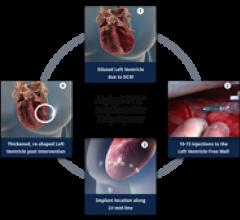 LoneStar Heart Inc.Algisyl-LVR Hydrogel Implant Heart Failure Treatment CE Mark