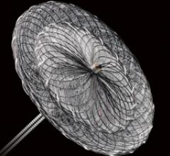Amplatzer Structural Heart Occulder Closure Device RESPECT Clinical Trial