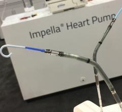 Abiomed Impella percutaneous ventricular assist device (pVAD) heart pump gains FDA PMA for high risk PCI.