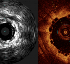 bioresorbable stents, bioabsorbable stents, visualizing the Absorb BVS, dissolving stent, disappearing stent on IVUS and OCT