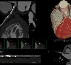 CT angiography, CTA, coronary CT, cardiac CT, SCCT, society of cardiovascular computed tomography, cardiac imaging