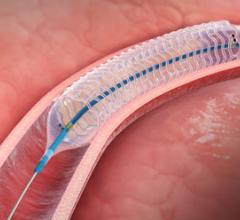 Elixer bioresorbable stent
