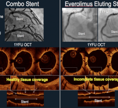OCT comparison between the Combo vs. Xience stents in the HARMONEE study.