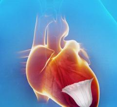 CardioKinetics PARACHUTE IV Clinical Trial Heart Failure Treatments