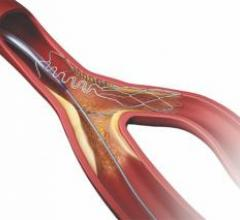 tryton stent, bifurcation stenting