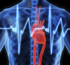 implantable cardioverter defibrillator, ep lab, leads, implantable devices