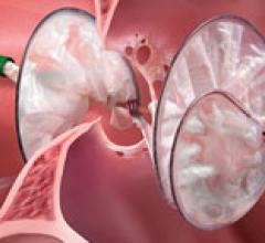 Gore Helex Septal Occluder Infringement Suit Ruiling AGA Medical Corp.
