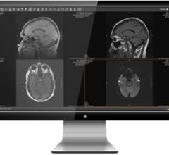 eHealth Technologies eHealthViewer ZF Remote Viewing System