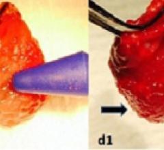 Johns Hopkins, sticky gel, stem cells, rat hearts, heart attacks