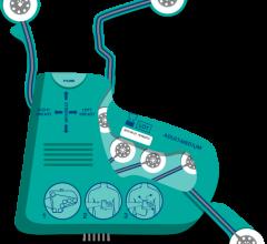 IneedMD Inc. ECG EKG Glove