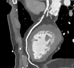 CT angiography, CTA, Medicare population, Harvey L. Neiman Health Policy Institute study, Neiman HPI