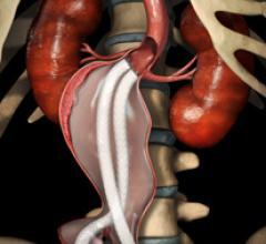 St. Vincent Heart Center, Nellix EVAS, Indiana, aneurysm repair, stent graft