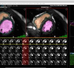 Heart Imaging Technologies, Precession, cardiac magnetic resonance, software