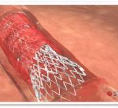 Stentys, CE Mark for self-apposing stent, lower limb artery disease, below-the-knee arteries, critical limb ischemia, PES BTK-70 trial