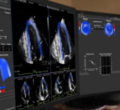 epsilon imaging echoinsight cardiac ultrasound systems mri