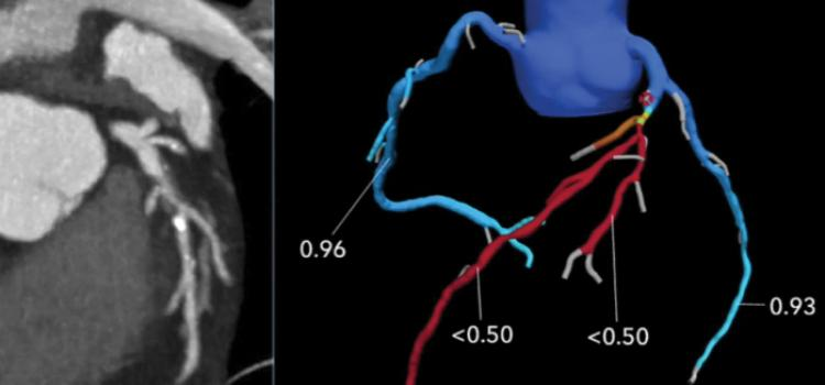 CT Offers Non-Invasive Alternative for Complex Coronary Disease Treatment Planning