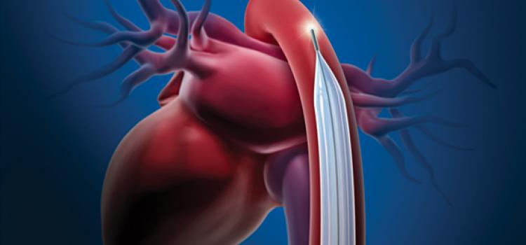 IABP - intra-aortic balloon pump