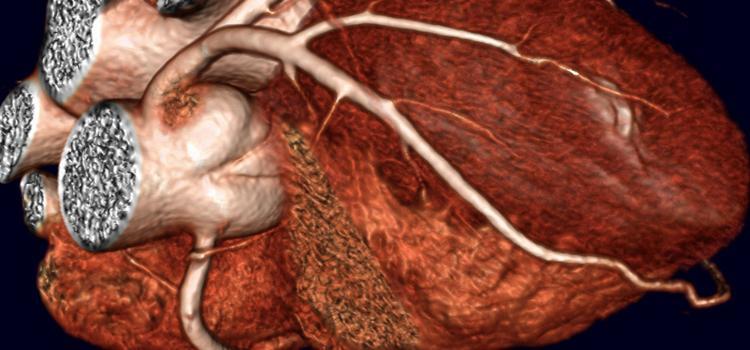 CTA, cardiac CT
