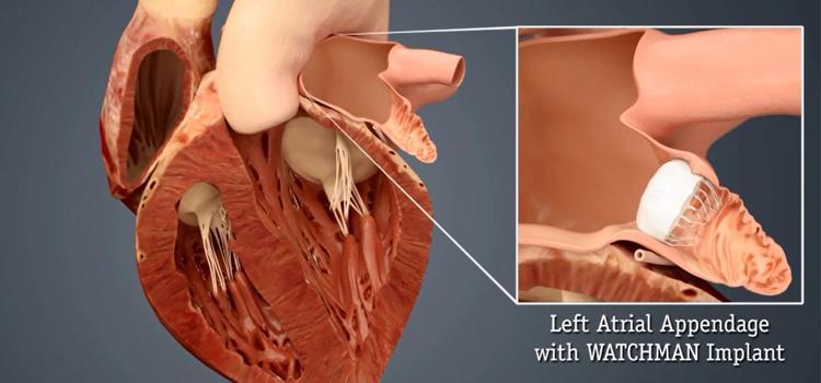 LAA, LAA occluder, left atrial appendage, Watchman